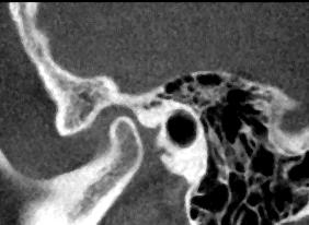 Kiefergelenkarthrosen